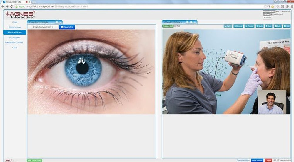 AMD Global image: Physicians can view examinations in real time and give instructions to the presiding nurse at the remote clinic.