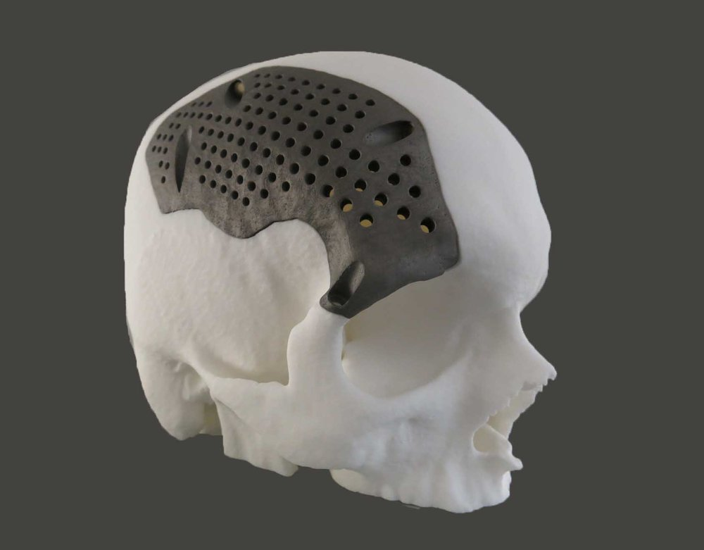 Another application is patient-specific implants. 3D printers, like the M 100, produce a precise implant customized to a patient's anatomy.